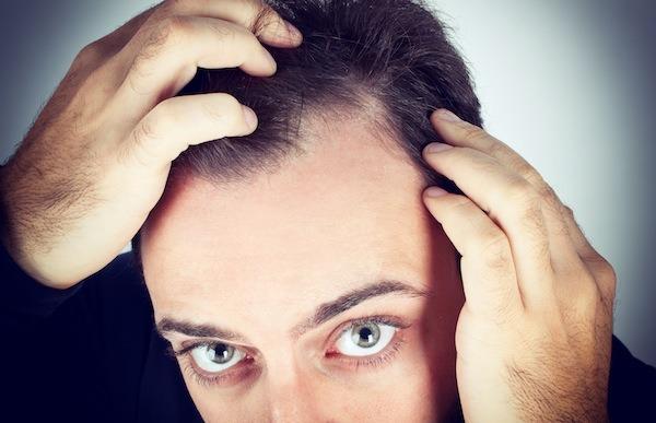Perdita di capelli con un bulbo